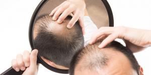 AGA(男性型脱毛症)治療薬処方